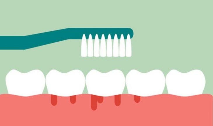 Sangrado de encías - Lara & Ochoa Clínica Dental